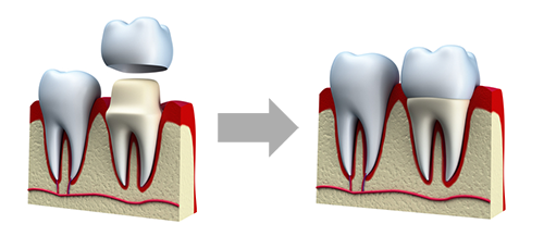 Illustration of all-ceramic crowns as used by Dr. Douglas Wooddell dentist in Annandale VA near Burke, Vienna and Fairfax VA