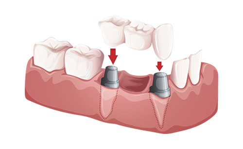Dental Bridges can be used to replace a missing tooth.