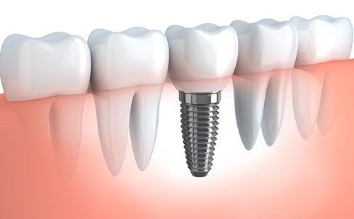 Illustration of a dental implant by Dr. Douglas Wooddell dentist in Annandale VA near Vienna, Burke and Fairfax VA