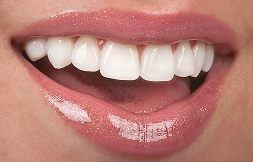 Porcelain veneers can give you a fabulous looking smile.