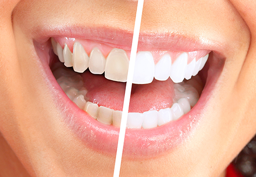 Dr. Wooddell uses several methods of teeth whitening