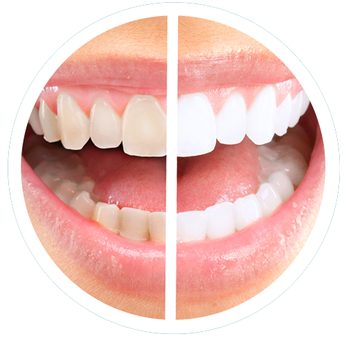 We can brighten and whiten your smile.